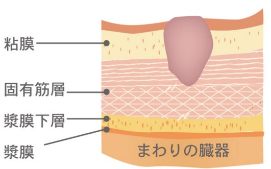 koyuukinsou