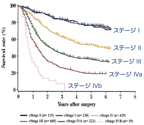 ステージ2の食道がんの生存率